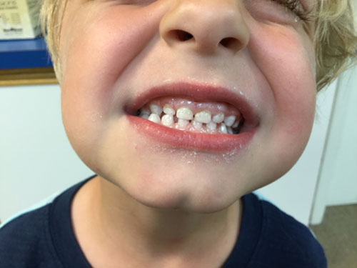 4-year-old boy smiling with cavity-free teeth image