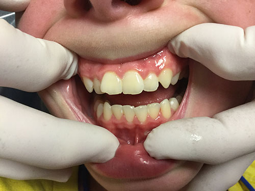 Teenage boy with autism at dentist image